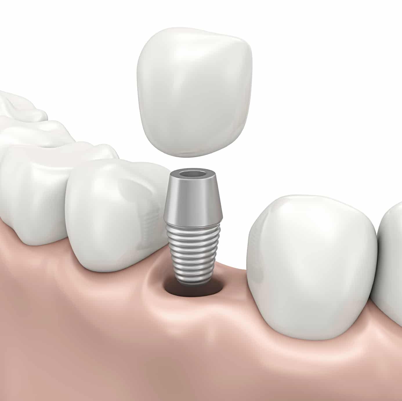 dental implants Affordable dental implant services of grand family dentistry provide same day dental implant services in baton rouge and mandeville areas.