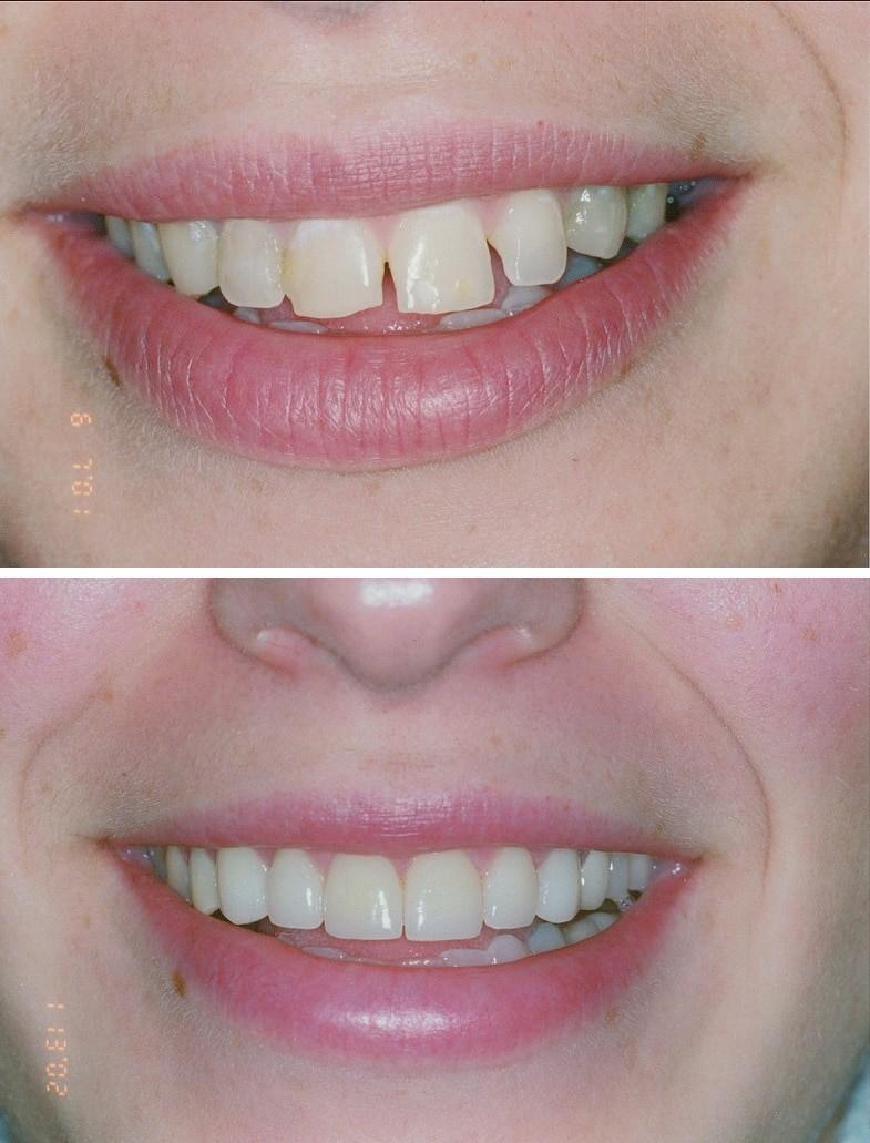 Porcelain Veneers - Pearly Whites Dental Care -Dentist Morrisville, PA