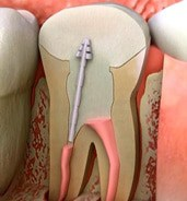 Root Canal (Endodontist)
