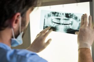 5 Reasons You Need Dental X-Rays Morrisville