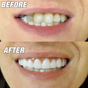 How Veneers Can Fix Your Teeth