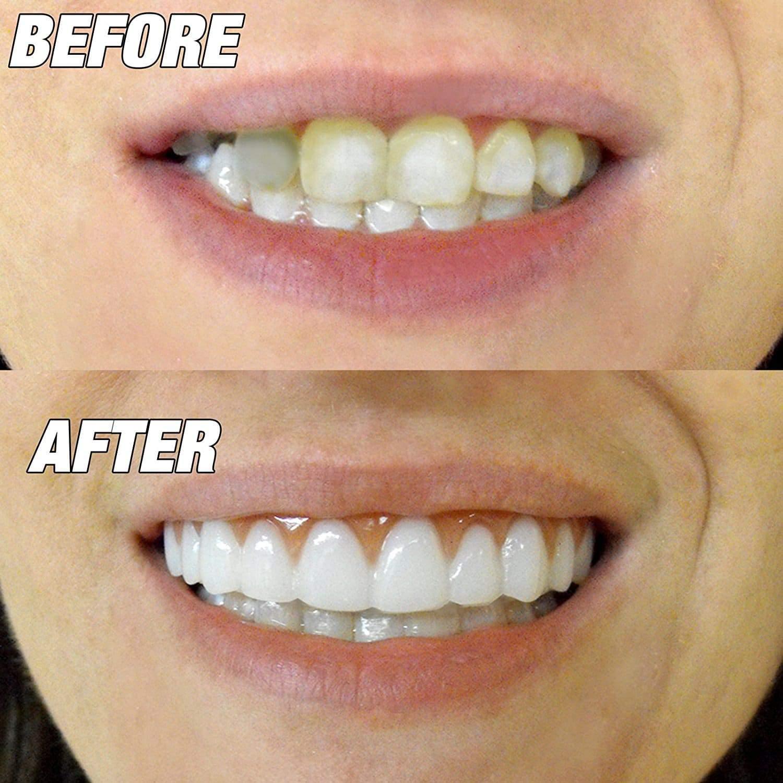 How Veneers Can Fix Your Teeth