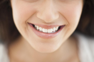 7 Reasons Why You Should Choose Invisalign Over Standard Braces